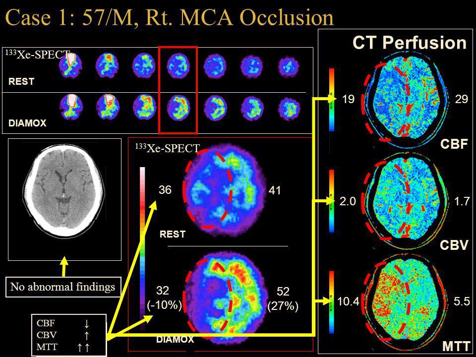 Case 1: 57/M, Rt. MCA Occlusion