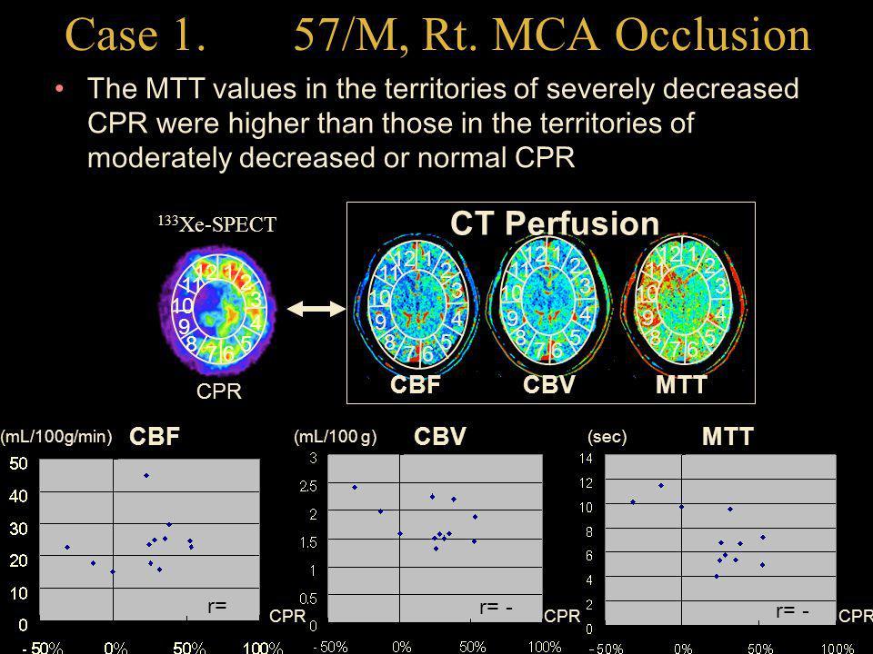 Case 1. 57/M, Rt. MCA Occlusion