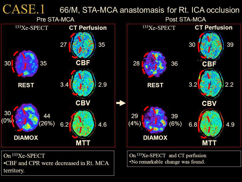 66/M, STA-MCA anastomasis for Rt. ICA occlusion