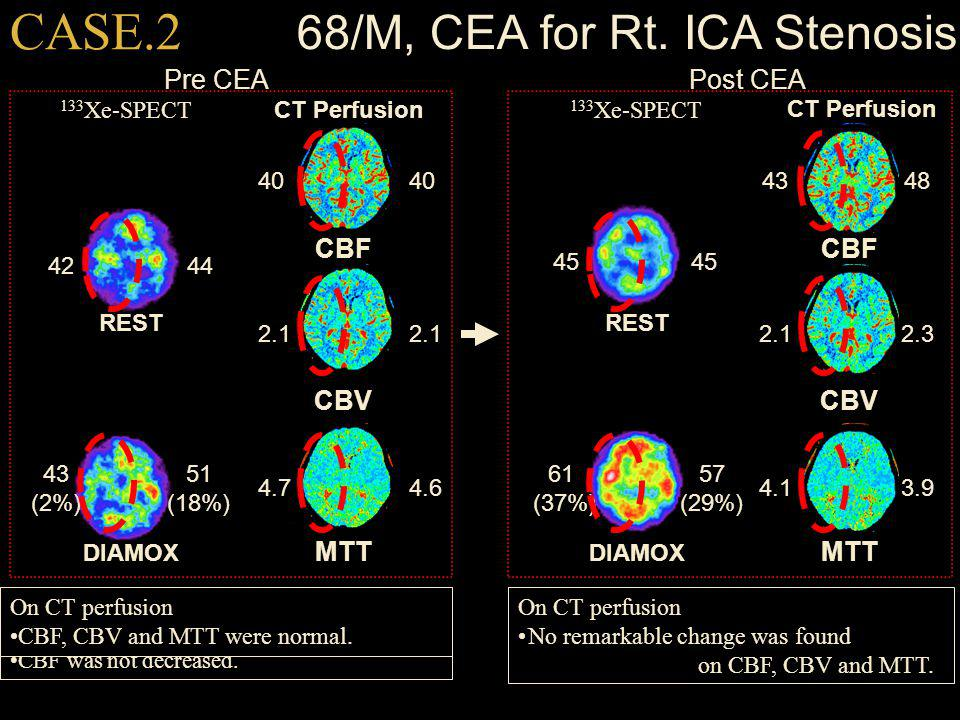 68/M, CEA for Rt. ICA Stenosis