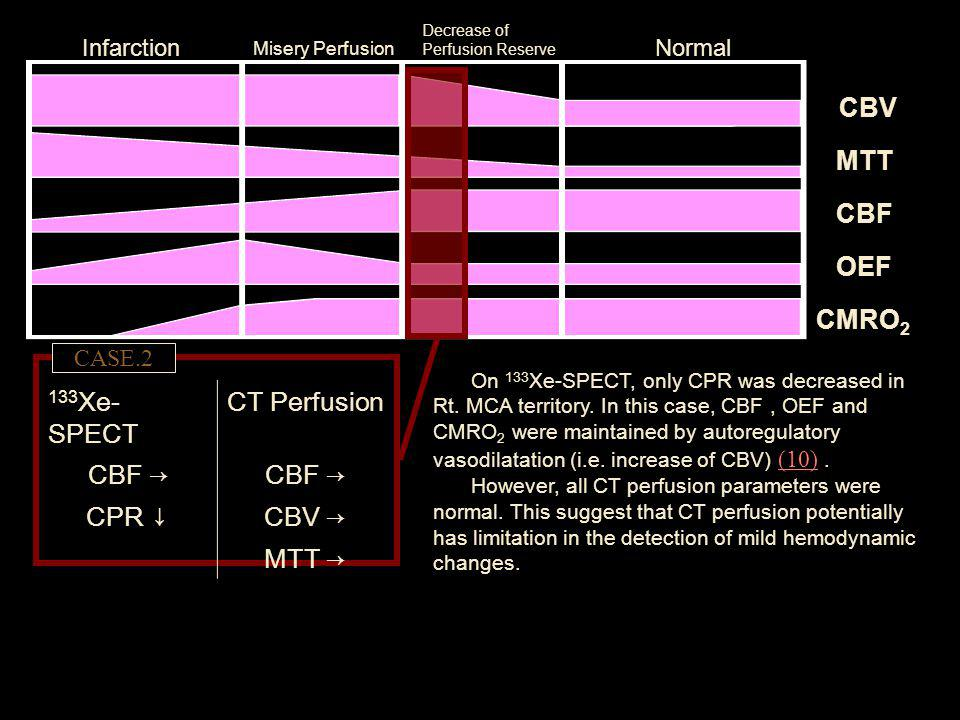 CBV MTT CBF OEF CMRO2 133Xe-SPECT CT Perfusion CBF → CPR ↓ CBV → MTT →