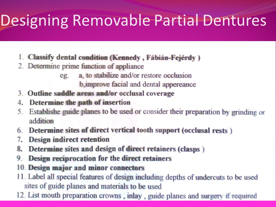 Designing Removable Partial Dentures