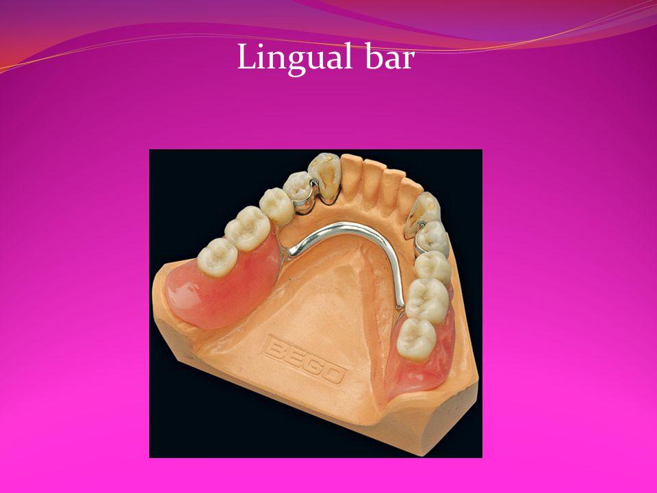 Lingual bar