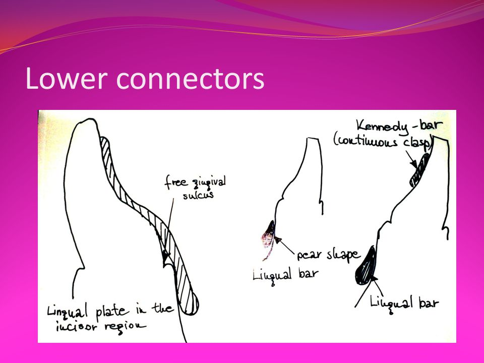 Lower connectors