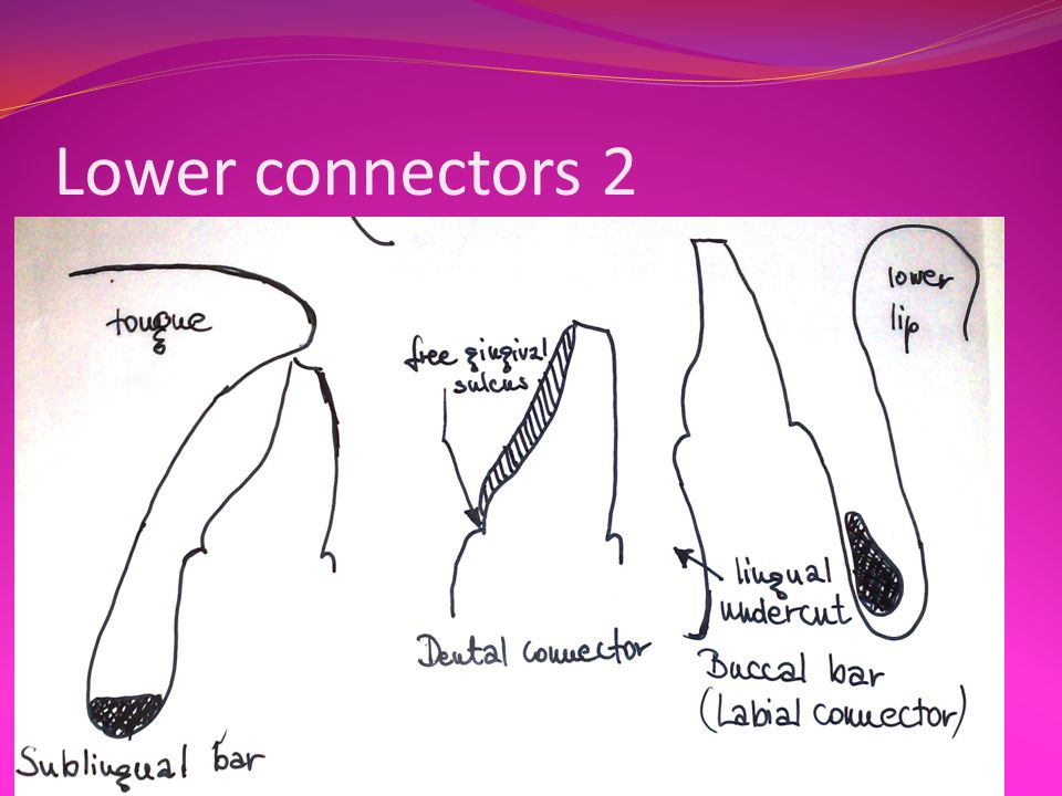 Lower connectors 2