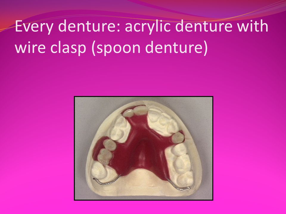Every denture: acrylic denture with wire clasp (spoon denture)