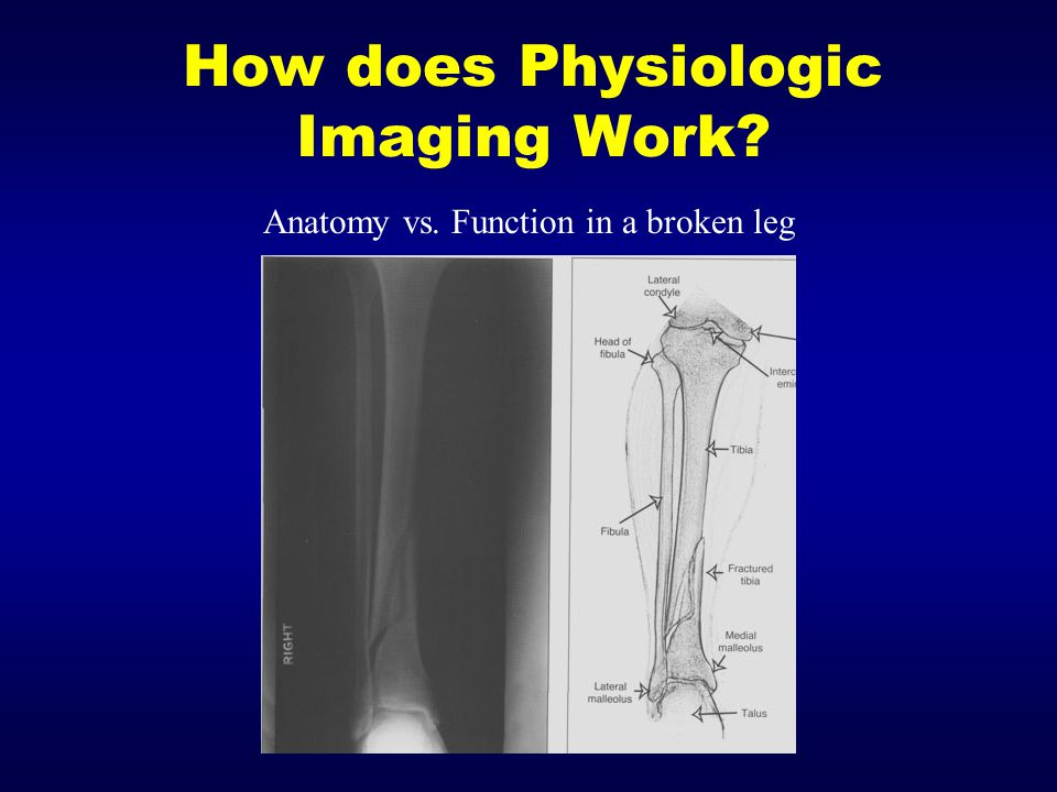 How does Physiologic Imaging Work