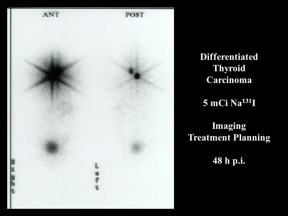 Differentiated Thyroid Carcinoma 5 mCi Na131I Imaging Treatment Planning 48 h p.i.