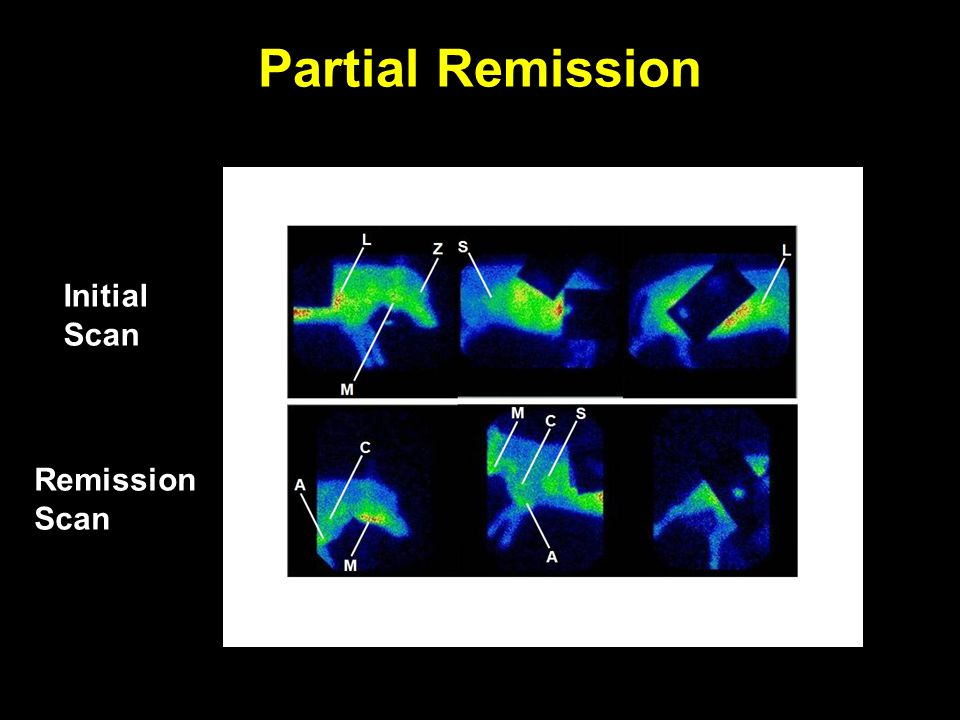 Partial Remission Initial Scan Remission Scan