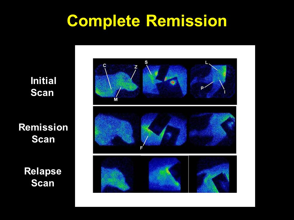 Complete Remission Initial Scan Remission Scan Relapse Scan