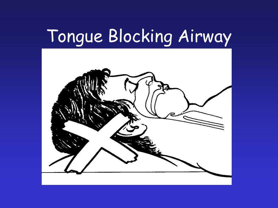 Tongue Blocking Airway