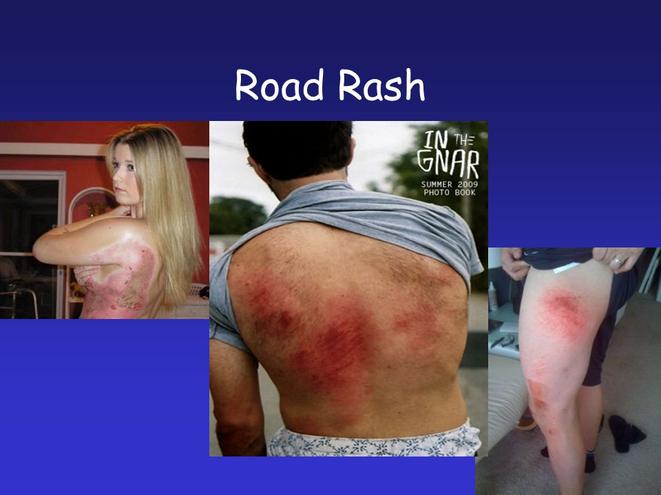 Road Rash OUCH !!!