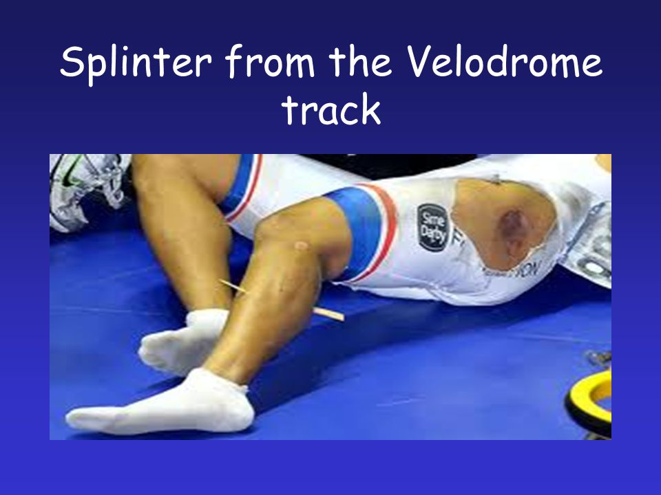 Splinter from the Velodrome track