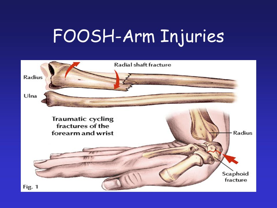 FOOSH-Arm Injuries Fallen on to out stretched hand FOOSH.