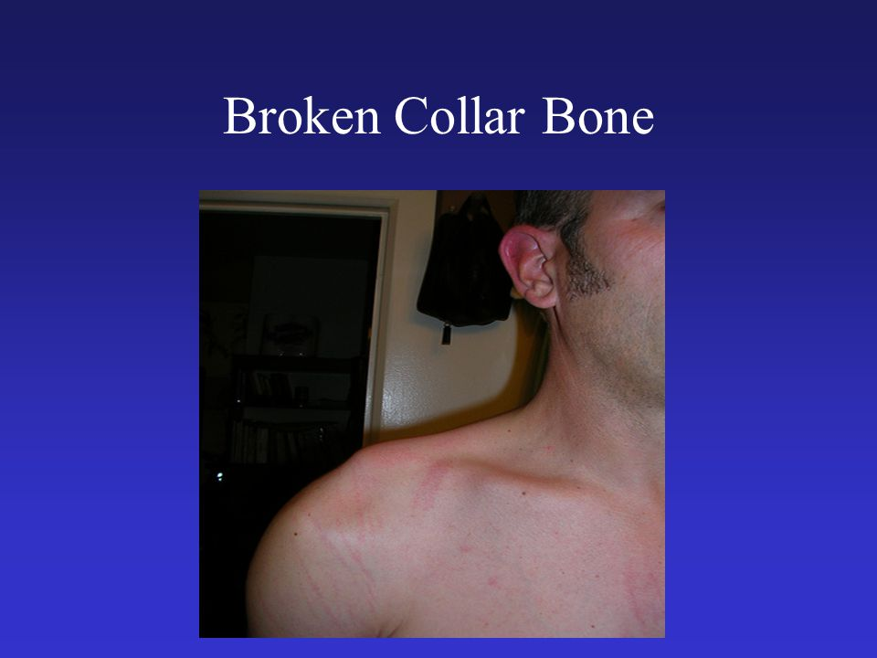Broken Collar Bone A typical cycling injury can you see the step or drop of the arm.