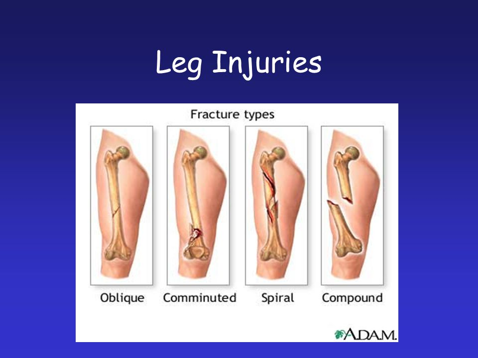 Leg Injuries Pictures of different types of breaks.