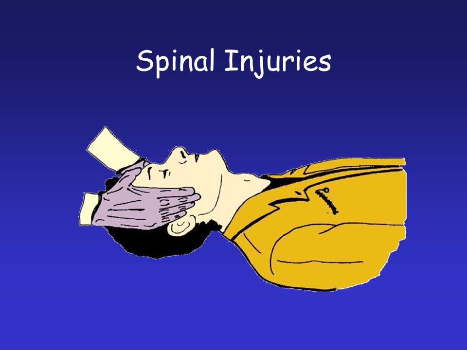 Spinal Injuries The Trauma Head hold