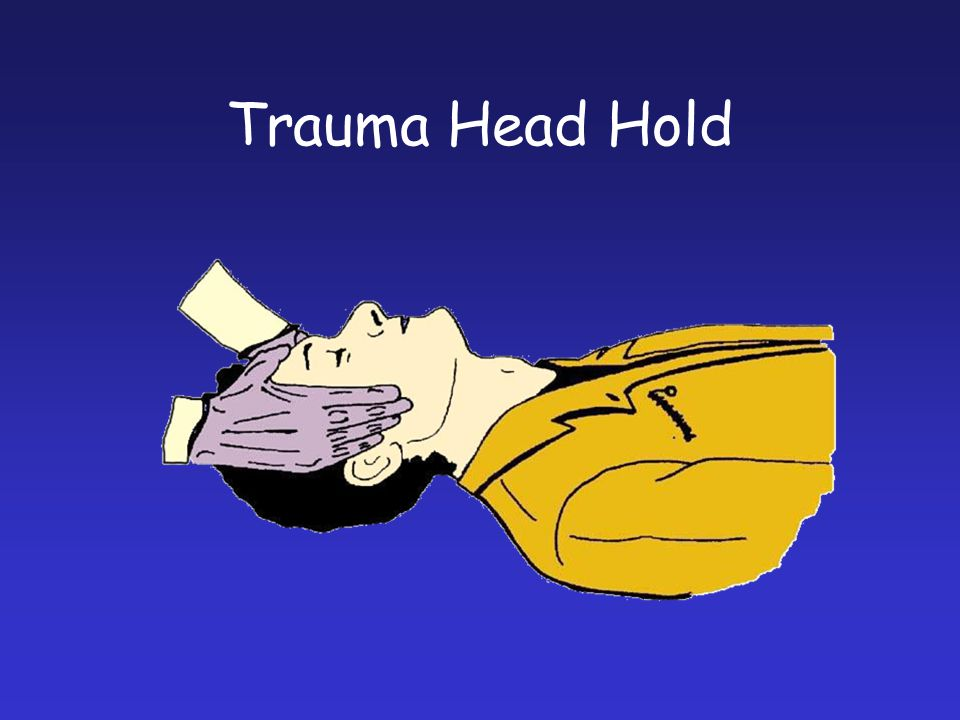 Trauma Head Hold The preferred hold of the suspected spinal injury.