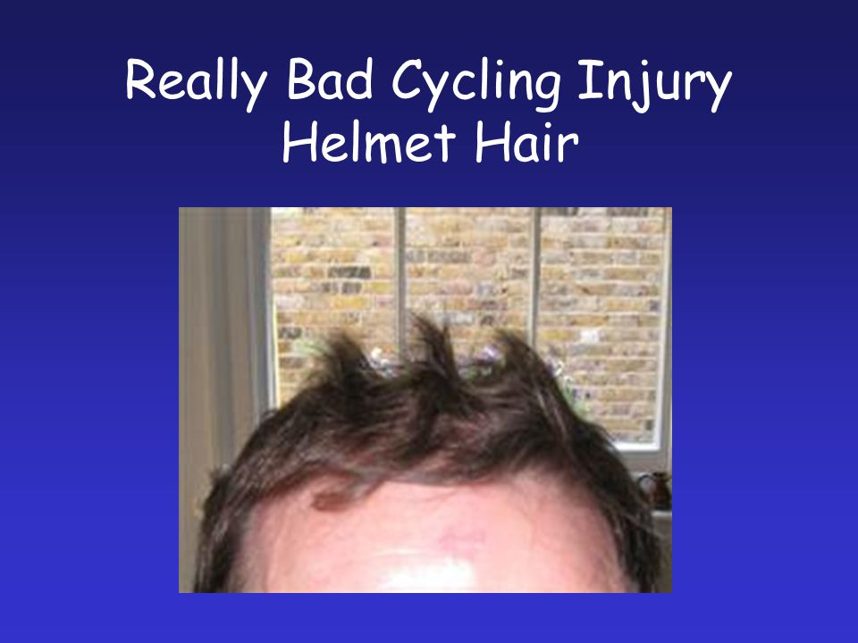 Really Bad Cycling Injury Helmet Hair