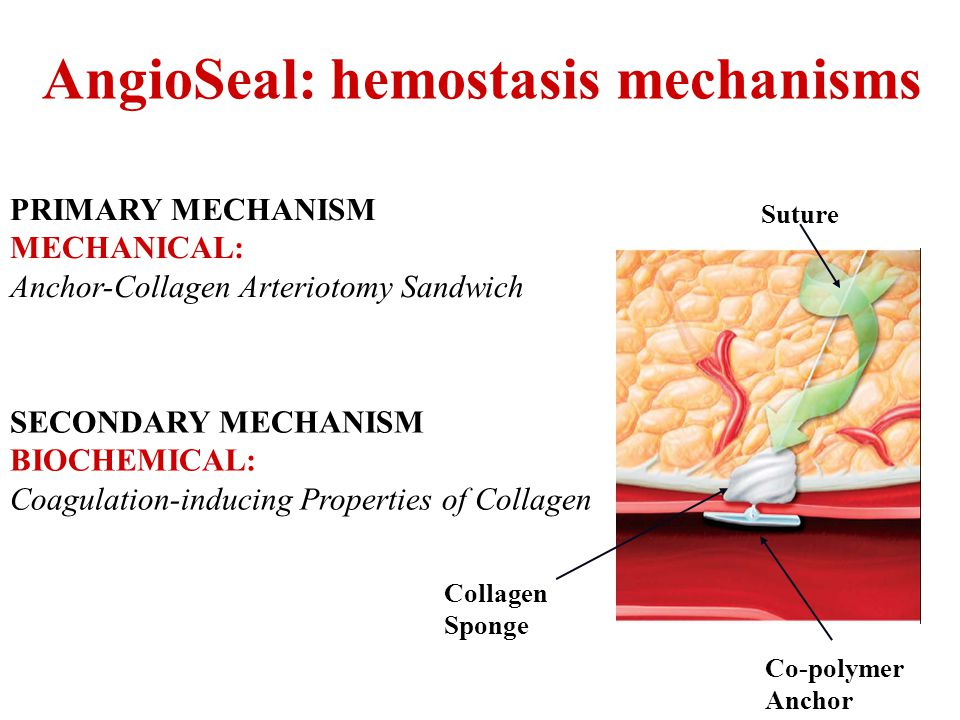 AngioSeal: hemostasis mechanisms