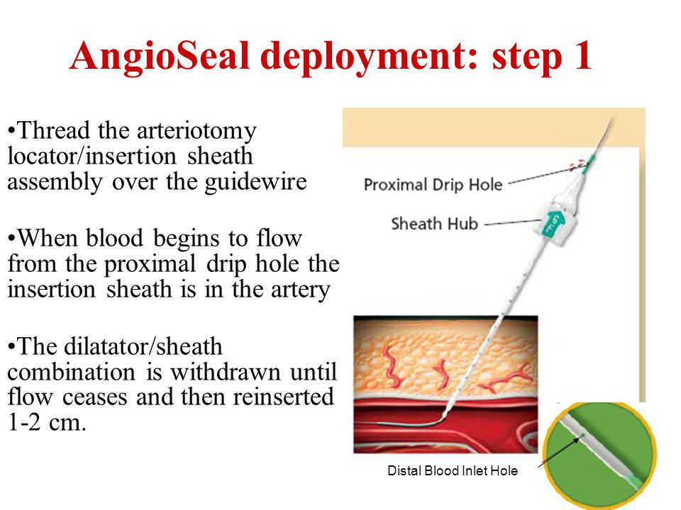 AngioSeal deployment: step 1