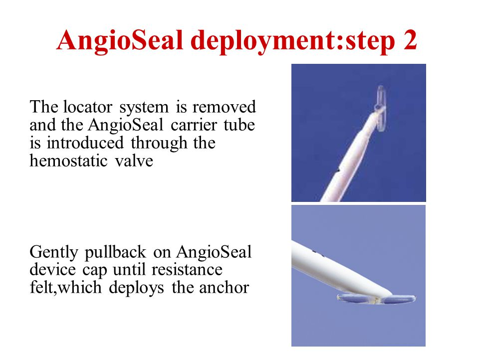 AngioSeal deployment:step 2