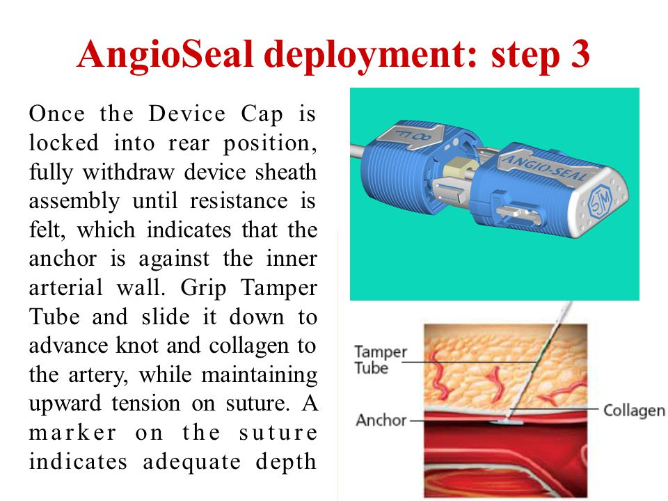 AngioSeal deployment: step 3
