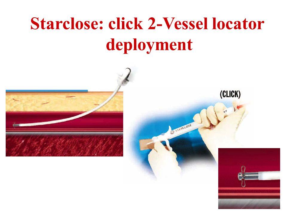 Starclose: click 2-Vessel locator