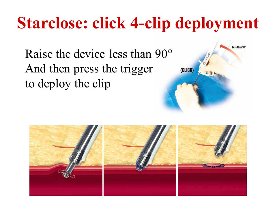 Starclose: click 4-clip deployment