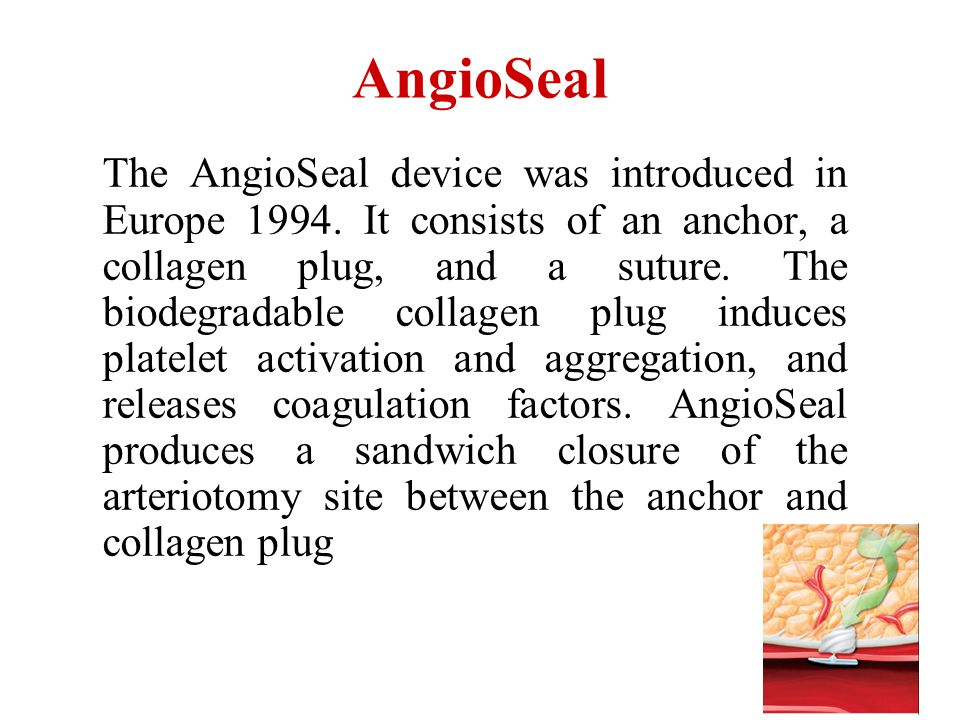AngioSeal