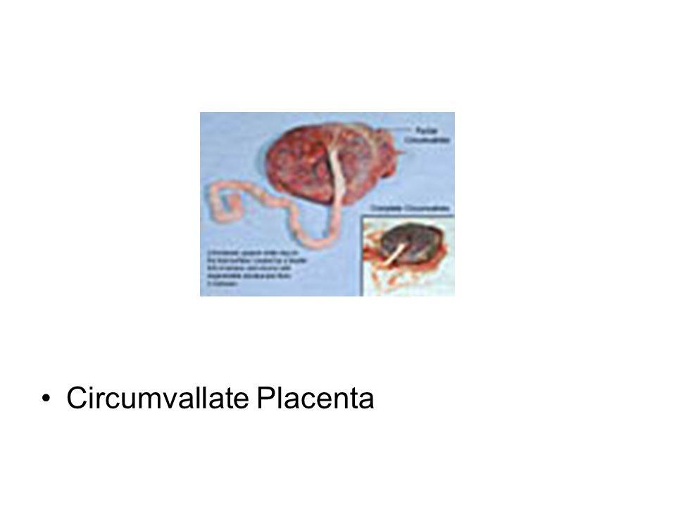 Circumvallate Placenta