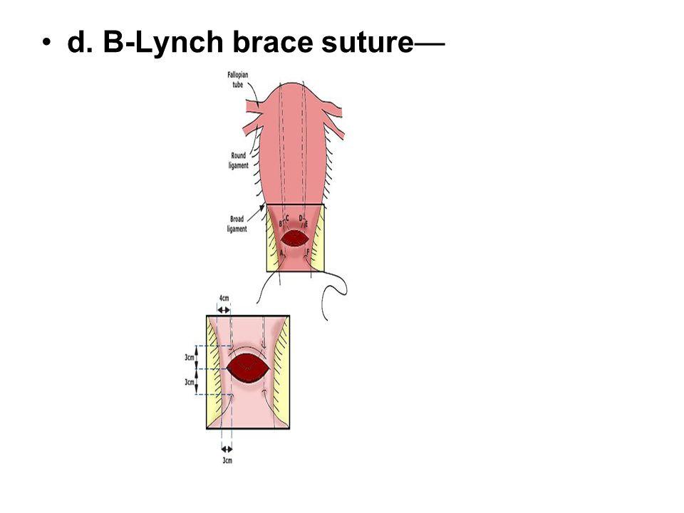 d. B-Lynch brace suture—