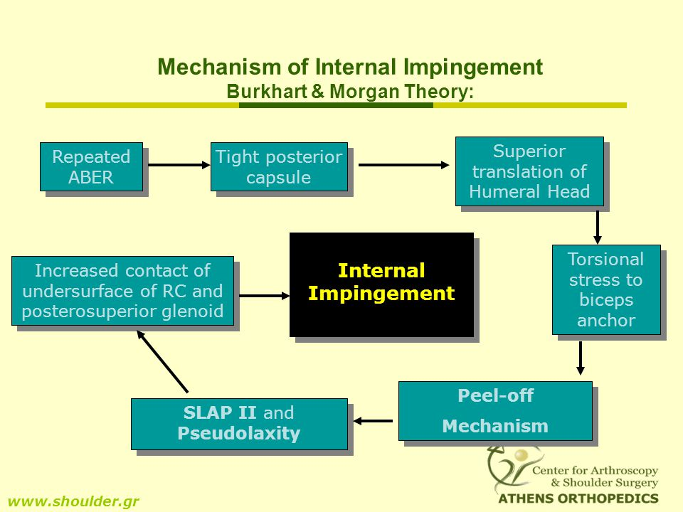 Mechanism of Internal Impingement Burkhart & Morgan Theory: