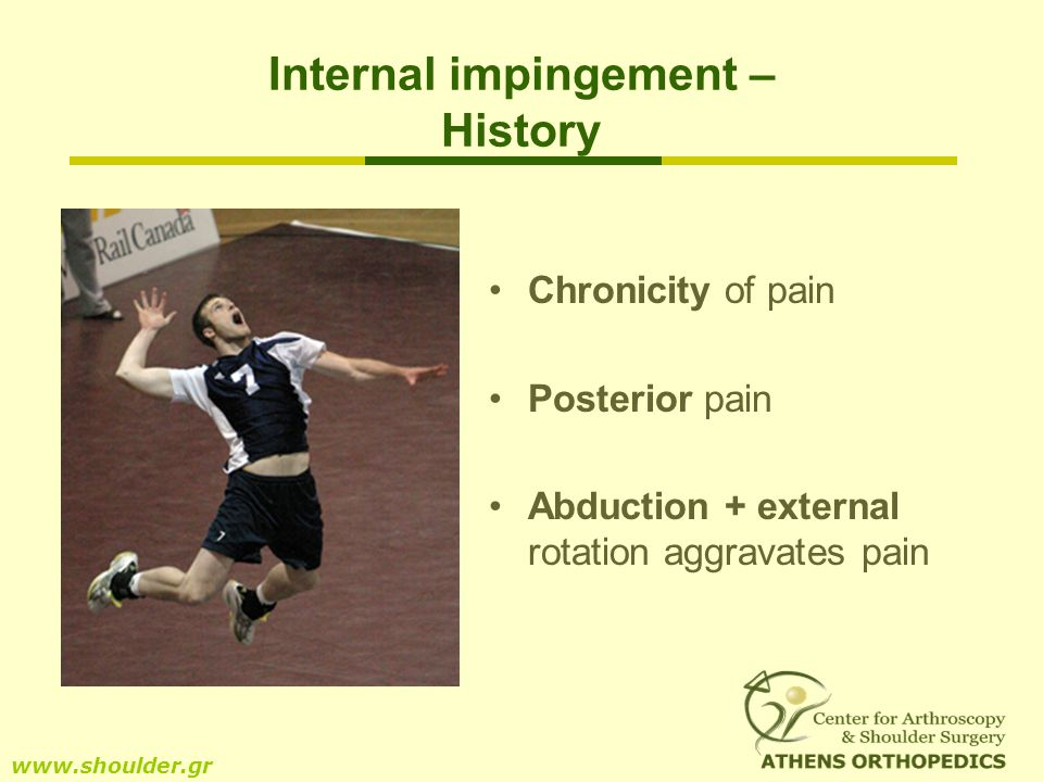 Internal impingement – History