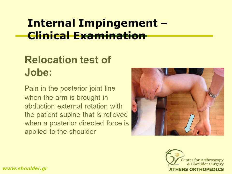 Internal Impingement – Clinical Examination