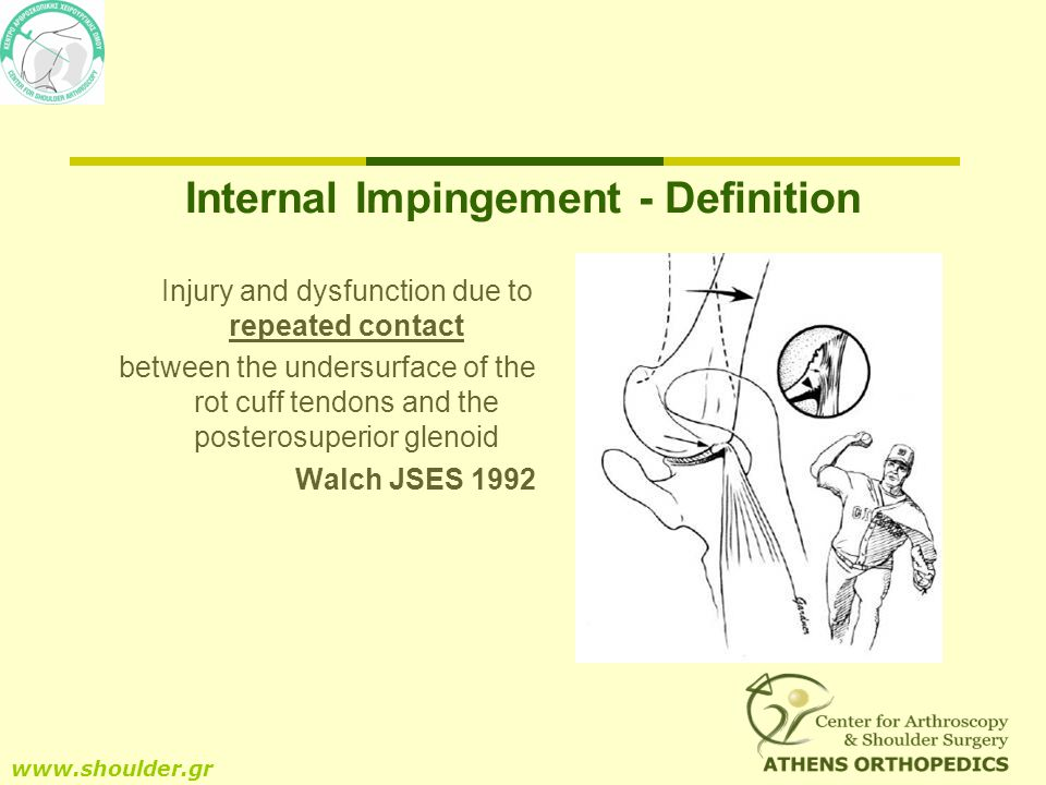 Internal Impingement - Definition