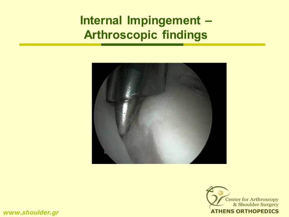 Internal Impingement – Arthroscopic findings