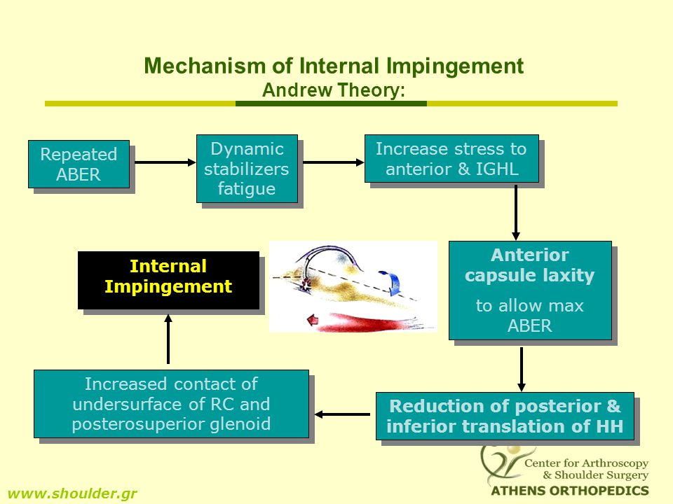 Mechanism of Internal Impingement Andrew Theory: