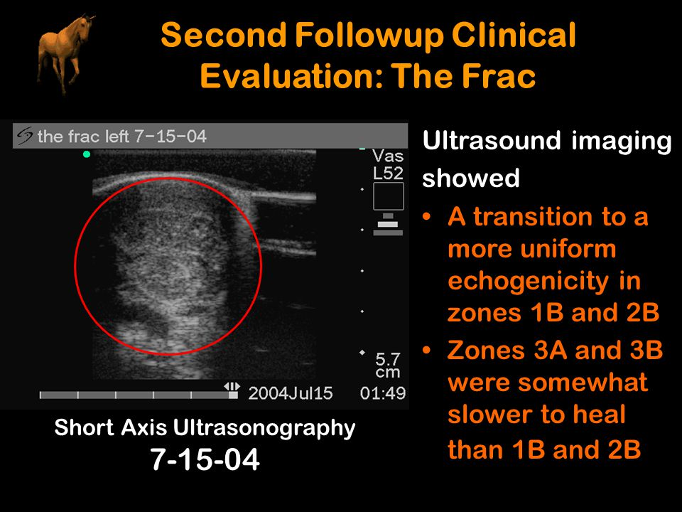 Second Followup Clinical Evaluation: The Frac