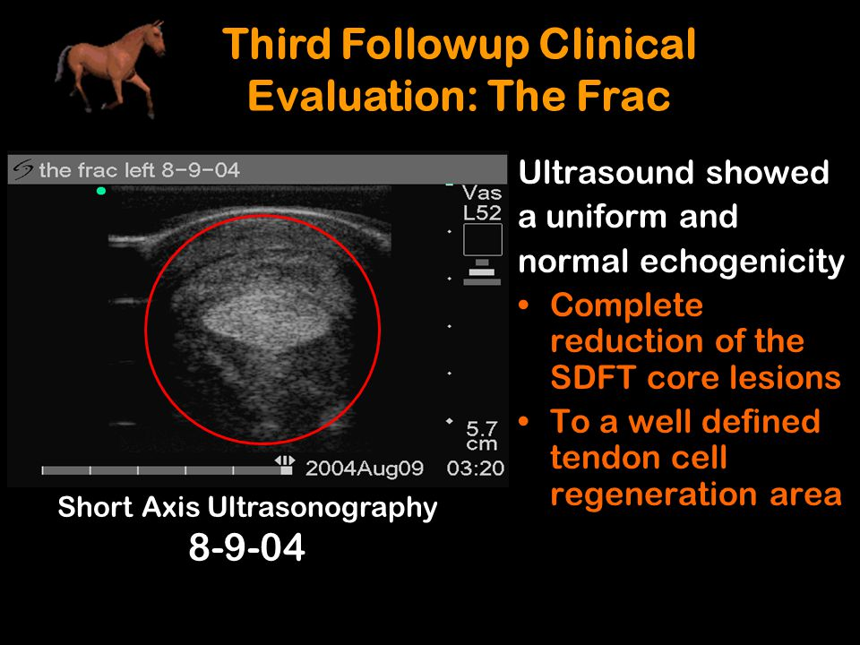Third Followup Clinical Evaluation: The Frac