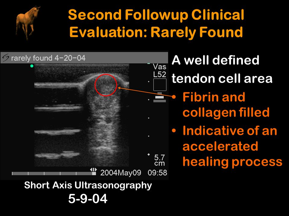 Second Followup Clinical Evaluation: Rarely Found