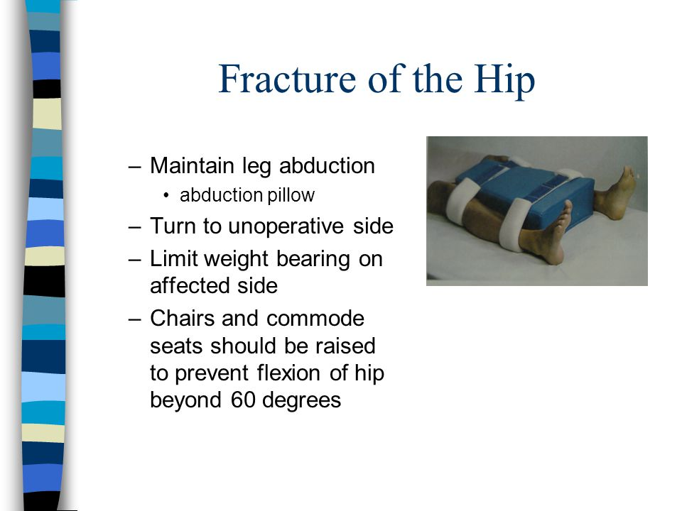 Fracture of the Hip Maintain leg abduction Turn to unoperative side