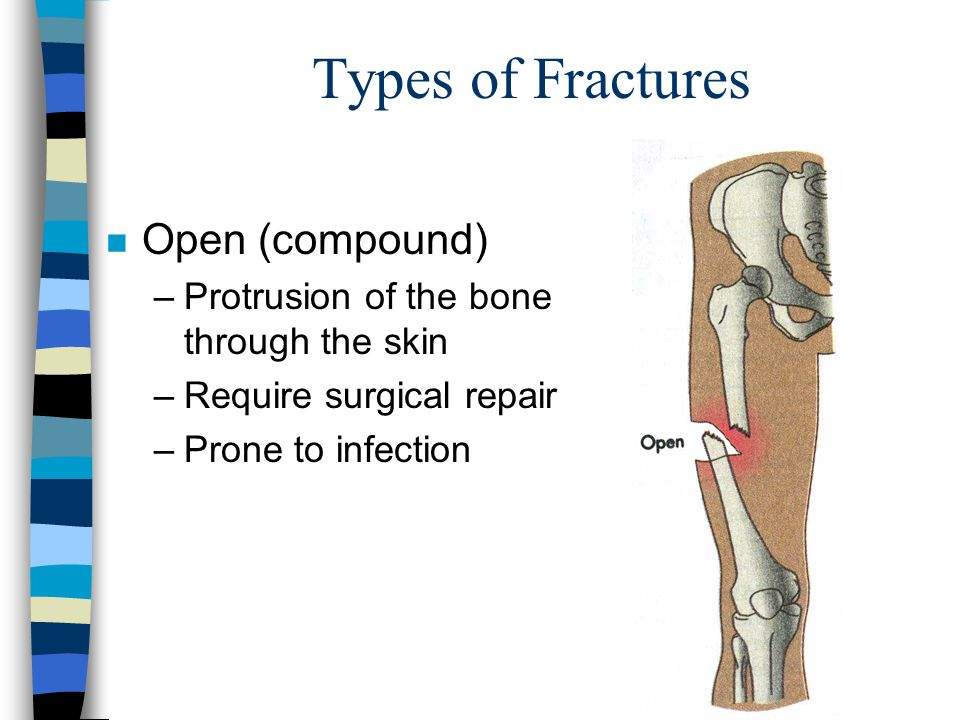 Types of Fractures Open (compound)