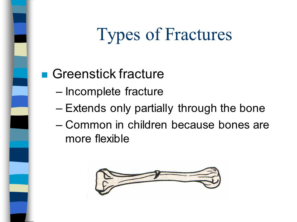 Types of Fractures Greenstick fracture Incomplete fracture