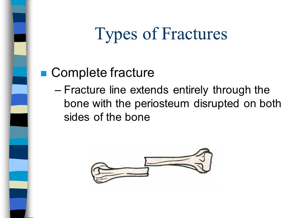 Types of Fractures Complete fracture