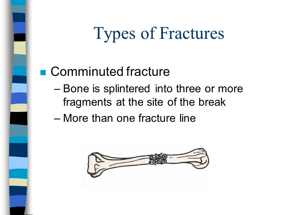Types of Fractures Comminuted fracture