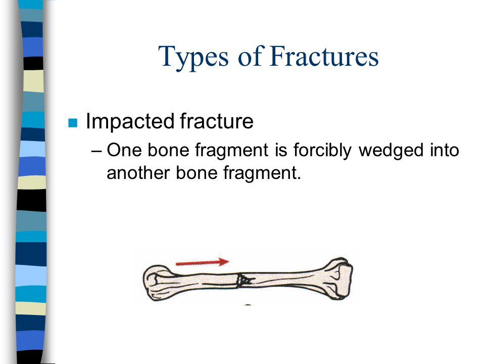 Types of Fractures Impacted fracture