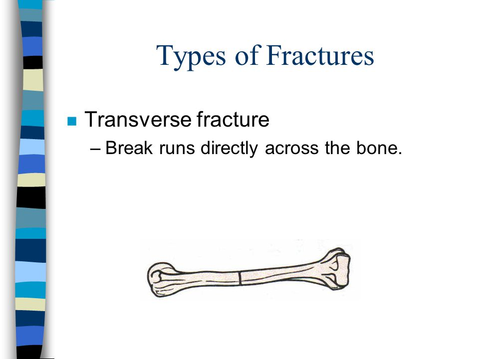 Types of Fractures Transverse fracture