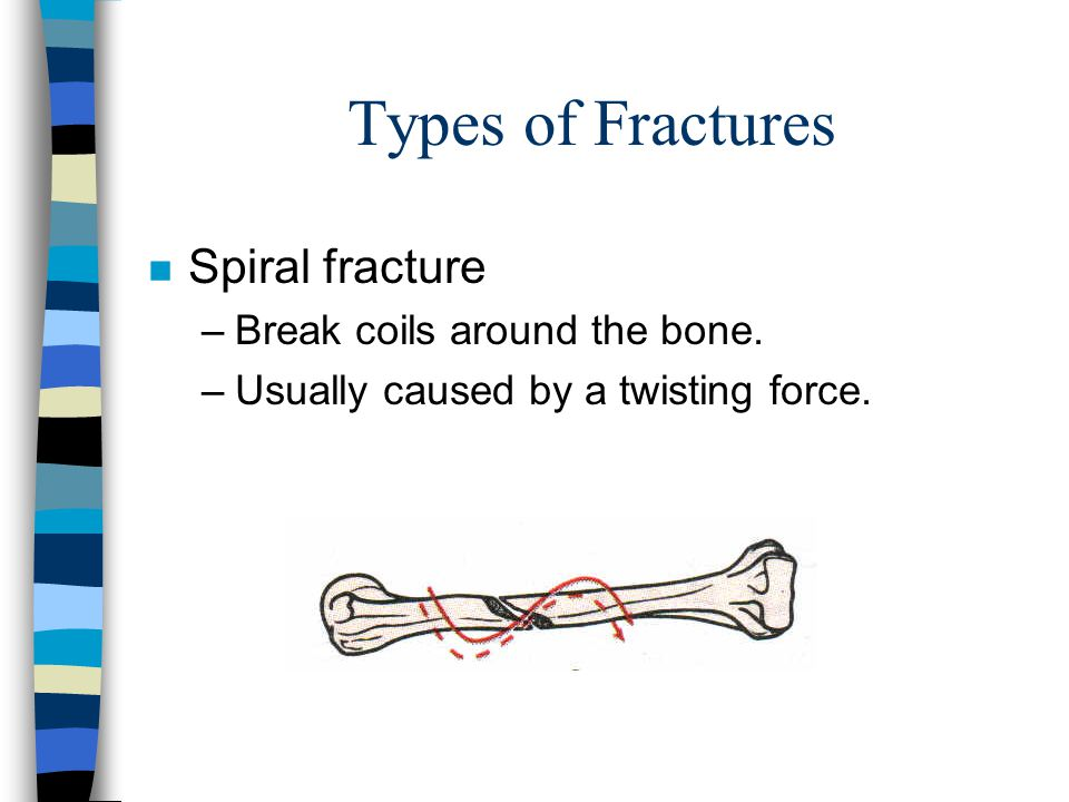 Types of Fractures Spiral fracture Break coils around the bone.