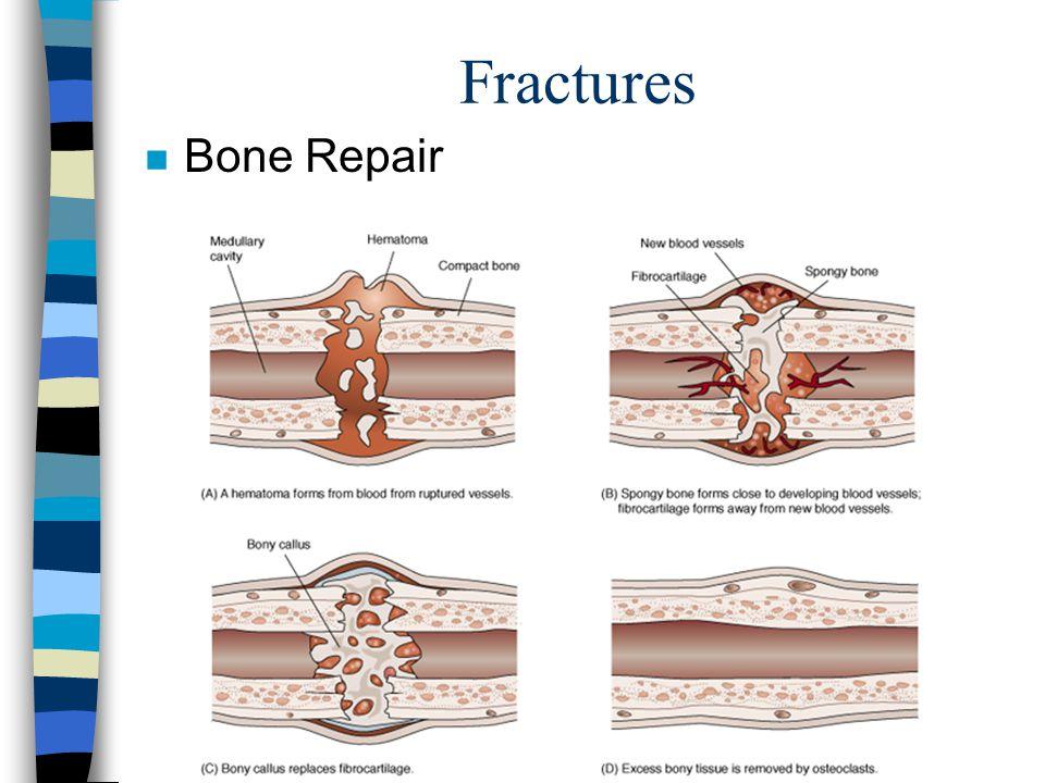 Fractures Bone Repair